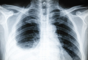 Pleurisy is inflammation of the membrane between your lungs and ribs, or pleura. The condition, which makes breathing both difficult and painful, often mimics the symptoms of a heart attack. (©istockphoto.com/UD10671)
