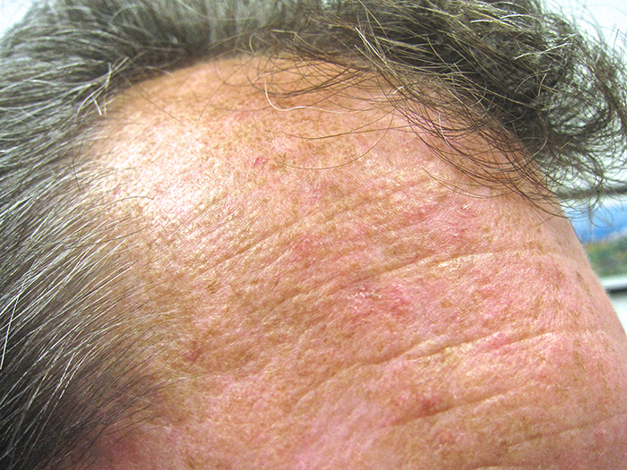 Are you plagued with scalp psoriasis 3